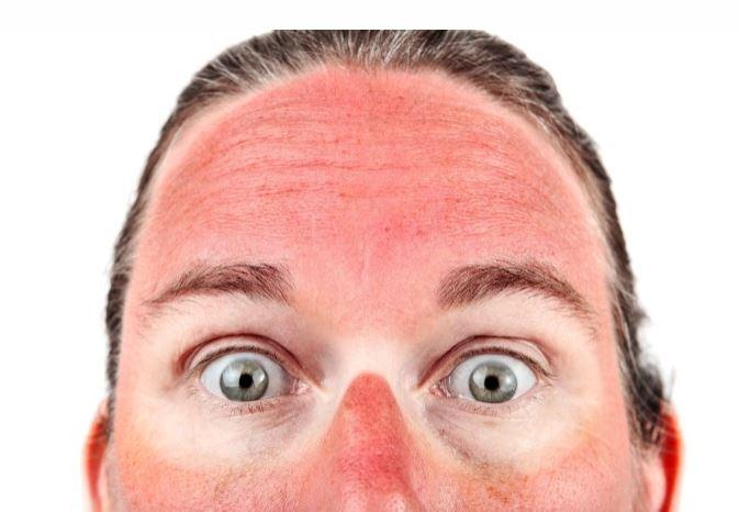 Colorado Springs Sunscreen